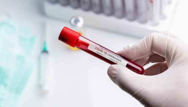 Переболевшие SARS в 2003 году невосприимчивы к коронавирусу